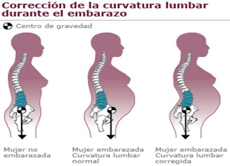 Curvatura lumbar en el embarazo